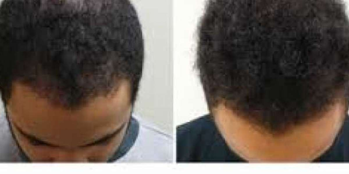 PRP for Hair Loss Before and After